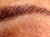 87 year old woman with new Brow