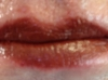 Lip after Indian Earth old after first implant of lip color and picking up the vermilion line.